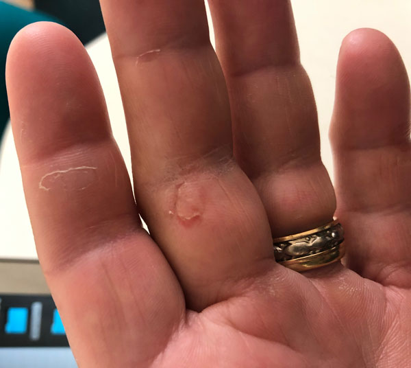 Sailing with no gloves can be dangerous to your hands